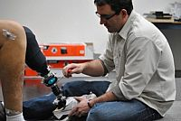 Photo of two people and one of them is checking the torsion on a prosthetic leg.
