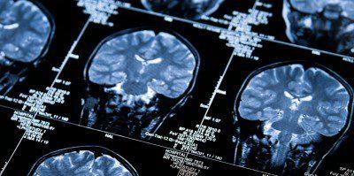 image of MRI image.