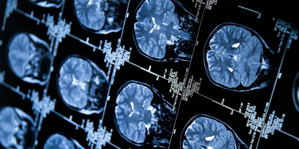 image of MRI images.