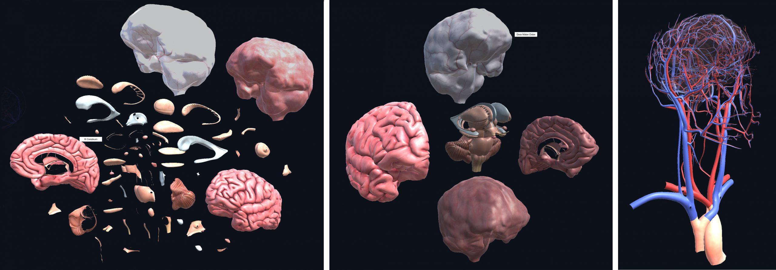 3d views of the brain