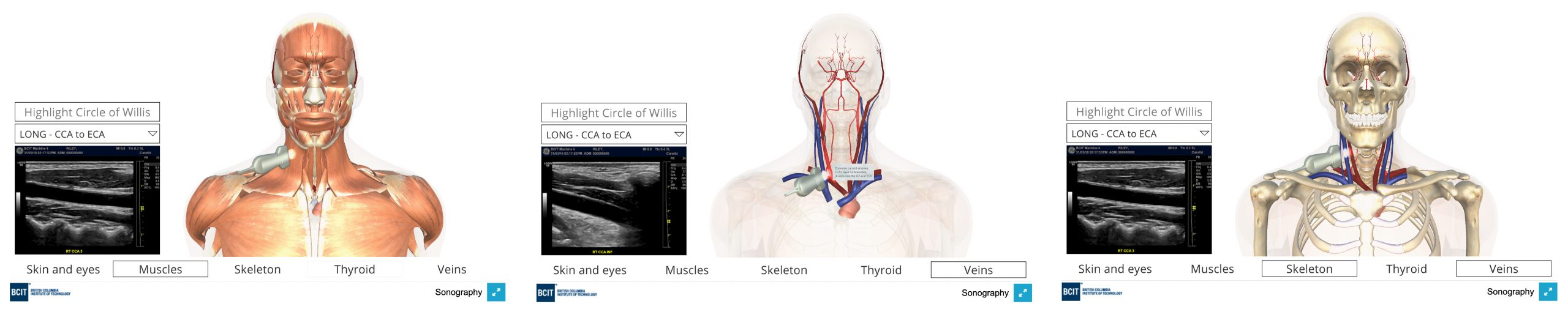 3d views of carotid artery